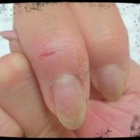Cenbless ネイリスト検定1級 アクリルリキッドによる一次性接触性皮膚炎?