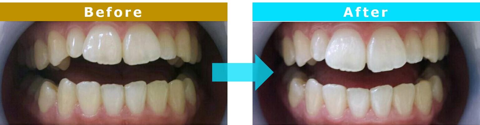 セルフホワイトニング(美歯口)/サービス効果例 ~Cenbless 成増フェイシャル&ネイルサロン