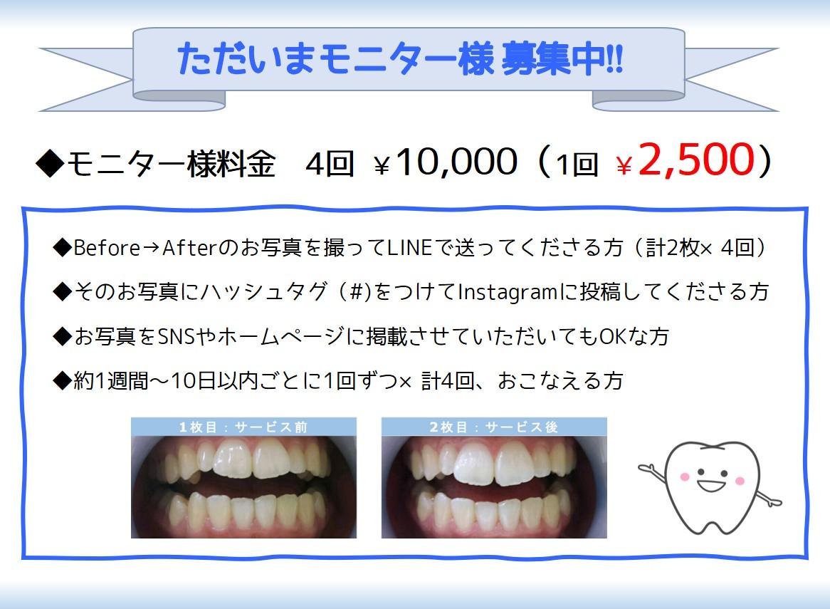 セルフホワイトニング(美歯口)モニター募集中 ~Cenbless 成増フェイシャル&ネイルサロン