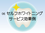 Cenbless 成増フェイシャル&ネイルサロン 06 セルフホワイトニング サービス効果例